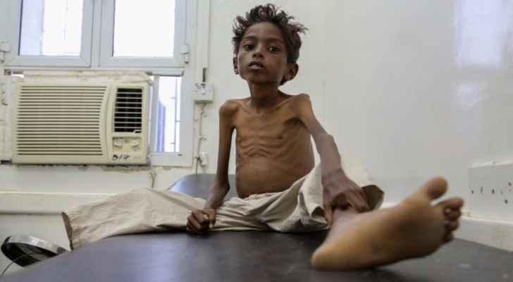 Five year-old Mohannad Ali sits starving in a hospital bed. His younger cousin, aged two, already died of hunger. (Photo Credit: UNICEF)