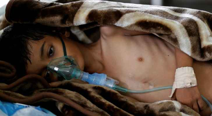 Yemen is in the midst of the largest humanitarian crisis ever seen. (Photo Credit: Reuters)