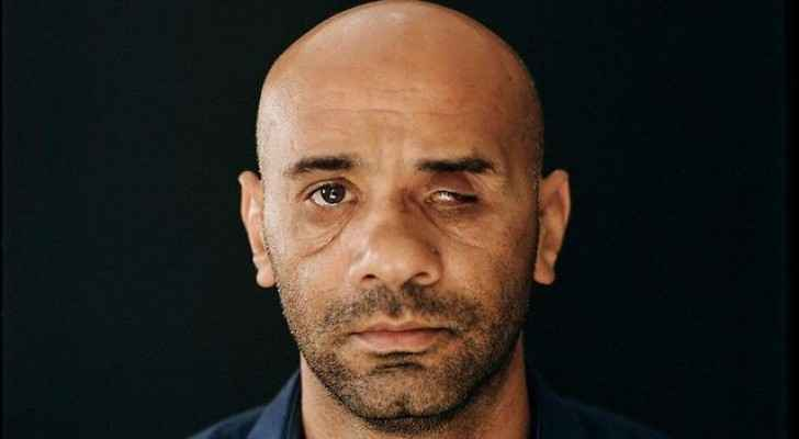 Luai Abed, 37-years-old, lost his eye after being shot by Israeli forces. (Photo: Luai Abed)