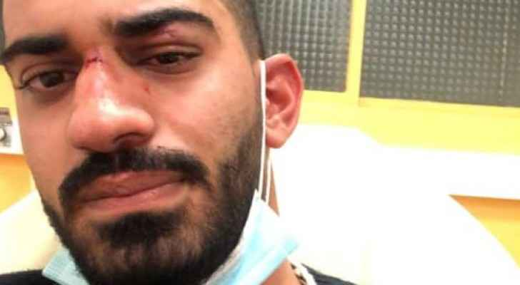 Jordanian siblings attacked in racist assault in France