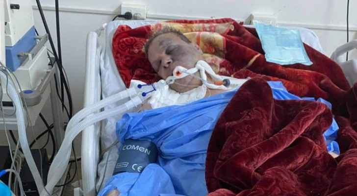 Jordanian doctor in critical condition in Libya due to COVID-19